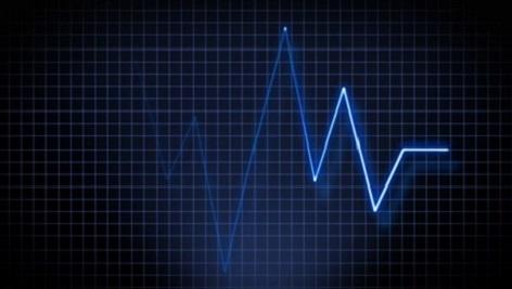 دانلود فوتیج رایگان ضربان قلب